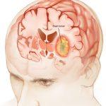 El riesgo de los tumores cerebrales